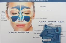 Illustration des sinus et fosses nasales